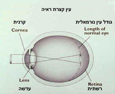 יוגה עיניים- קוצר ראיה